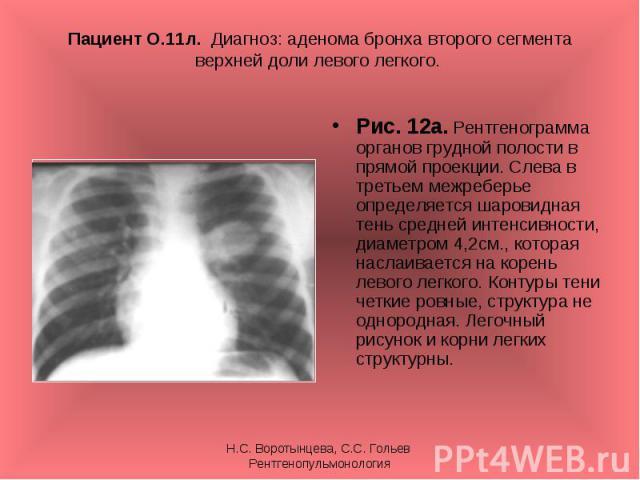 Рис. 12а. Рентгенограмма органов грудной полости в прямой проекции. Слева в третьем межреберье определяется шаровидная тень средней интенсивности, диаметром 4,2см., которая наслаивается на корень левого легкого. Контуры тени четкие ровные, структура…