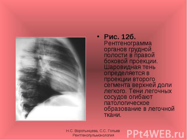 Рис. 12б. Рентгенограмма органов грудной полости в правой боковой проекции. Шаровидная тень определяется в проекции второго сегмента верхней доли легкого. Тени легочных сосудов огибают патологическое образование в легочной ткани. Рис. 12б. Рентгеног…