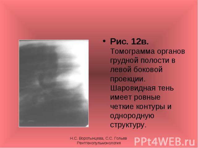 Рис. 12в. Томограмма органов грудной полости в левой боковой проекции. Шаровидная тень имеет ровные четкие контуры и однородную структуру. Рис. 12в. Томограмма органов грудной полости в левой боковой проекции. Шаровидная тень имеет ровные четкие кон…