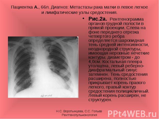 Рис.2а. Рентгенограмма органов грудной полости в прямой проекции. Слева на фоне переднего отрезка четвертого ребра определяется шаровидная тень средней интенсивности, неоднородной структуры, имеющая неровные нечеткие контуры, диаметром - до 4,0см. К…