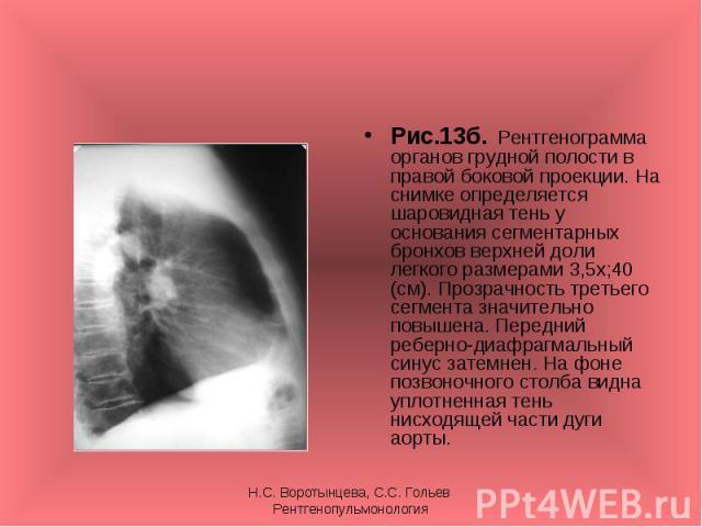 Рис.13б. Рентгенограмма органов грудной полости в правой боковой проекции. На снимке определяется шаровидная тень у основания сегментарных бронхов верхней доли легкого размерами 3,5х;40 (см). Прозрачность третьего сегмента значительно повышена. Пере…