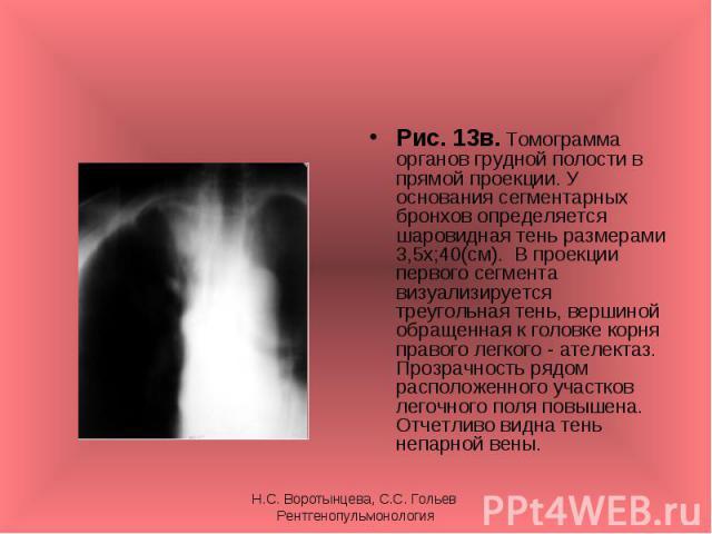 Рис. 13в. Томограмма органов грудной полости в прямой проекции. У основания сегментарных бронхов определяется шаровидная тень размерами 3,5х;40(см). В проекции первого сегмента визуализируется треугольная тень, вершиной обращенная к головке корня пр…