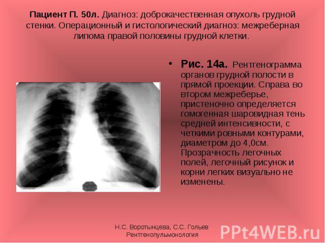 Рис. 14а. Рентгенограмма органов грудной полости в прямой проекции. Справа во втором межреберье, пристеночно определяется гомогенная шаровидная тень средней интенсивности, с четкими ровными контурами, диаметром до 4,0см. Прозрачность легочных полей,…