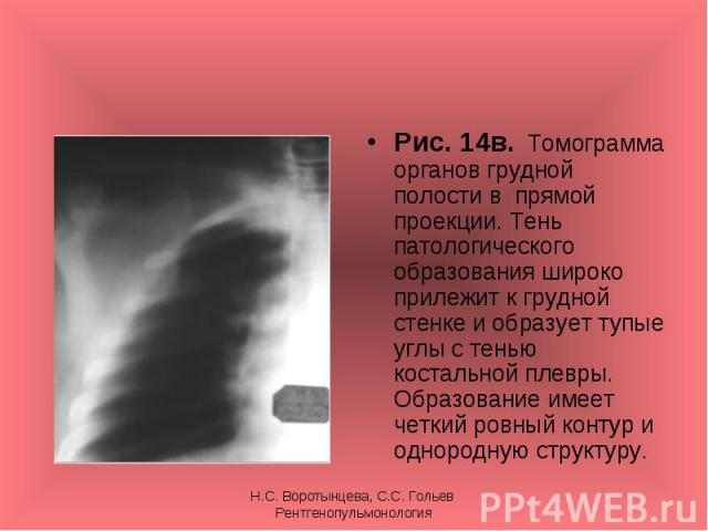 Рис. 14в. Томограмма органов грудной полости в прямой проекции. Тень патологического образования широко прилежит к грудной стенке и образует тупые углы с тенью костальной плевры. Образование имеет четкий ровный контур и однородную структуру. Рис. 14…