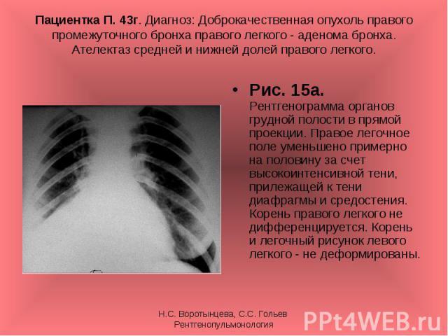 Рис. 15а. Рентгенограмма органов грудной полости в прямой проекции. Правое легочное поле уменьшено примерно на половину за счет высокоинтенсивной тени, прилежащей к тени диафрагмы и средостения. Корень правого легкого не дифференцируется. Корень и л…