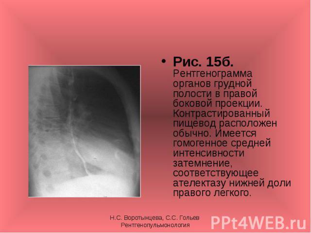 Рис. 15б. Рентгенограмма органов грудной полости в правой боковой проекции. Контрастированный пищевод расположен обычно. Имеется гомогенное средней интенсивности затемнение, соответствующее ателектазу нижней доли правого легкого. Рис. 15б. Рентгеног…