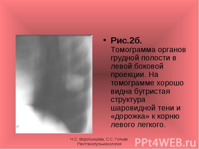 Рис.2б. Томограмма органов грудной полости в левой боковой проекции. На томограмме хорошо видна бугристая структура шаровидной тени и «дорожка» к корню левого легкого. Рис.2б. Томограмма органов грудной полости в левой боковой проекции. На томограмм…