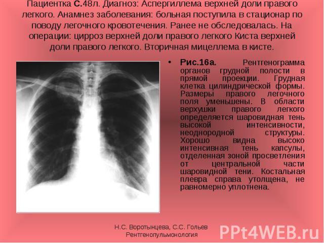 Рис.16а. Рентгенограмма органов грудной полости в прямой проекции. Грудная клетка цилиндрической формы. Размеры правого легочного поля уменьшены. В области верхушки правого легкого определяется шаровидная тень высокой интенсивности, неоднородной стр…