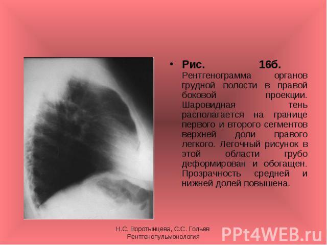 Рис. 16б. Рентгенограмма органов грудной полости в правой боковой проекции. Шаровидная тень располагается на границе первого и второго сегментов верхней доли правого легкого. Легочный рисунок в этой области грубо деформирован и обогащен. Прозрачност…