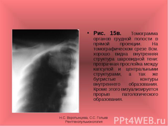 Рис. 15в. Томограмма органов грудной полости в прямой проекции. На томографическом срезе 8см. хорошо видна внутренняя структура шаровидной тени: прозрачная прослойка между капсулой и центральными структурами, а так же бугристые контуры внутреннего о…