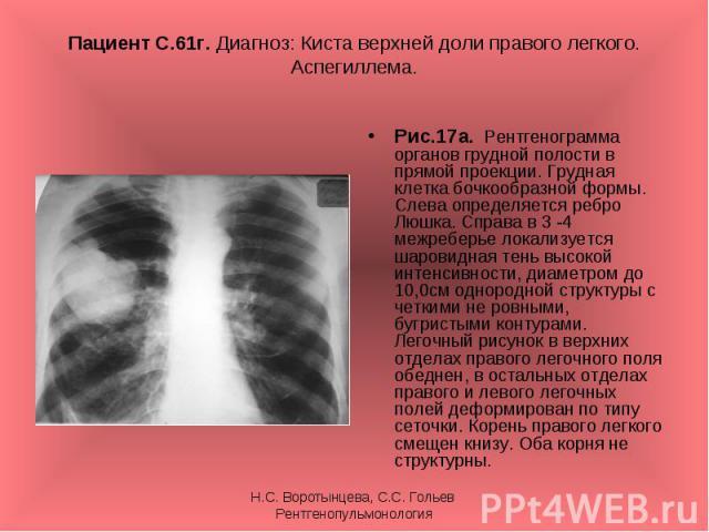 Рис.17а. Рентгенограмма органов грудной полости в прямой проекции. Грудная клетка бочкообразной формы. Слева определяется ребро Люшка. Справа в 3 -4 межреберье локализуется шаровидная тень высокой интенсивности, диаметром до 10,0см однородной структ…