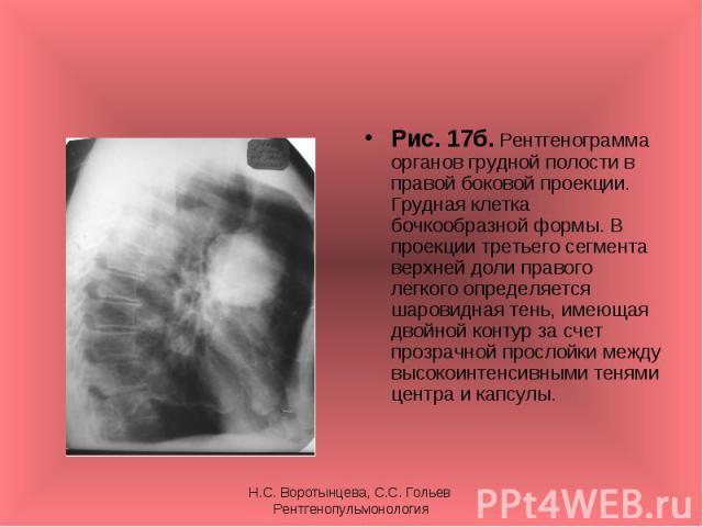 Рис. 17б. Рентгенограмма органов грудной полости в правой боковой проекции. Грудная клетка бочкообразной формы. В проекции третьего сегмента верхней доли правого легкого определяется шаровидная тень, имеющая двойной контур за счет прозрачной прослой…