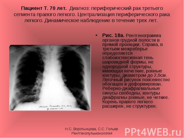 Рис. 18а. Рентгенограмма органов грудной полости в прямой проекции. Справа, в третьем межреберье определяется слабоинтенсивная тень шаровидной формы, не однородной структуры, имеющая нечеткие, ровные контуры, диаметром до 2,0см. Легочный рисунок пов…