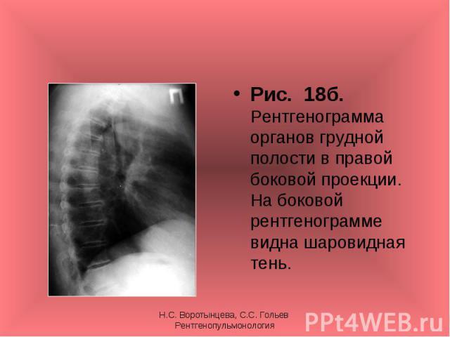 Рис. 18б. Рентгенограмма органов грудной полости в правой боковой проекции. На боковой рентгенограмме видна шаровидная тень. Рис. 18б. Рентгенограмма органов грудной полости в правой боковой проекции. На боковой рентгенограмме видна шаровидная тень.