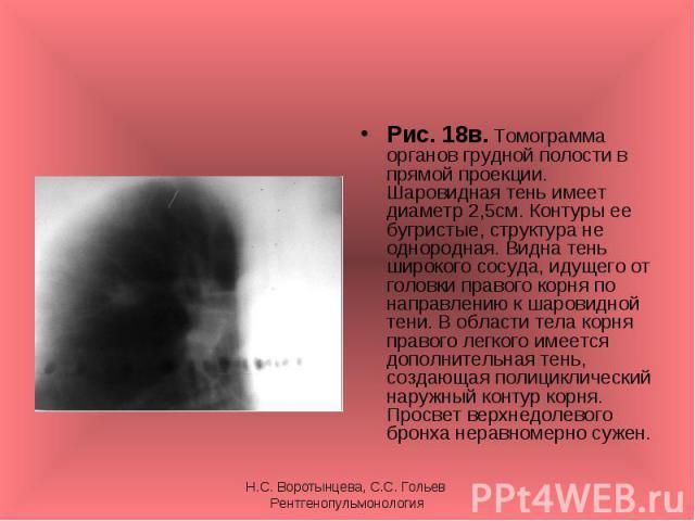 Рис. 18в. Томограмма органов грудной полости в прямой проекции. Шаровидная тень имеет диаметр 2,5см. Контуры ее бугристые, структура не однородная. Видна тень широкого сосуда, идущего от головки правого корня по направлению к шаровидной тени. В обла…