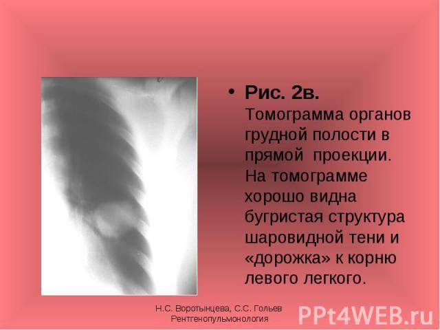 Рис. 2в. Томограмма органов грудной полости в прямой проекции. На томограмме хорошо видна бугристая структура шаровидной тени и «дорожка» к корню левого легкого. Рис. 2в. Томограмма органов грудной полости в прямой проекции. На томограмме хорошо вид…