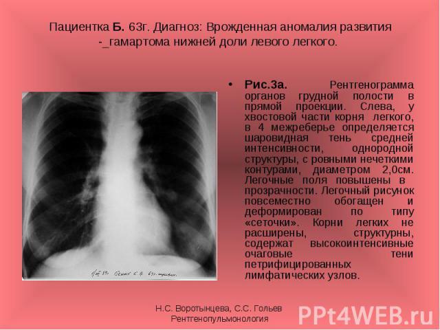 Рис.3а. Рентгенограмма органов грудной полости в прямой проекции. Слева, у хвостовой части корня легкого, в 4 межреберье определяется шаровидная тень средней интенсивности, однородной структуры, с ровными нечеткими контурами, диаметром 2,0см. Легочн…