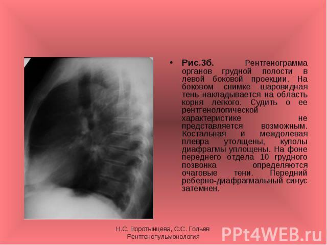 Рис.3б. Рентгенограмма органов грудной полости в левой боковой проекции. На боковом снимке шаровидная тень накладывается на область корня легкого. Судить о ее рентгенологической характеристике не представляется возможным. Костальная и междолевая пле…