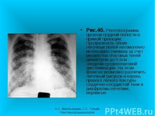 Рис.4б. Рентгенограмма органов грудной полости в прямой проекции. Прозрачность о