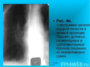 Рис. 4в. Томограмма органов грудной полости в прямой проекции. Просвет долевых,
