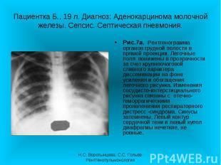 Рис.7а. Рентгенограмма органов грудной полости в прямой проекции. Легочные поля