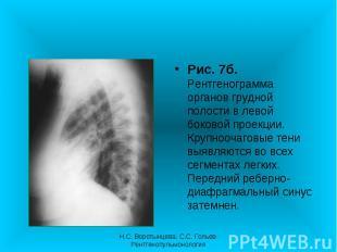 Рис. 7б. Рентгенограмма органов грудной полости в левой боковой проекции. Крупно