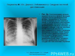 Рис. 8а. Рентгенограмма органов грудной полости в прямой проекции. Грудная клетк