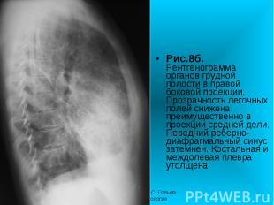 Рис.8б. Рентгенограмма органов грудной полости в правой боковой проекции. Прозра