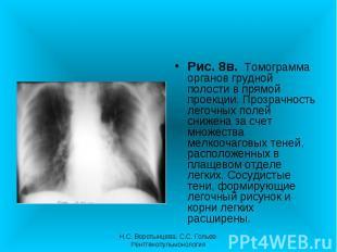 Рис. 8в. Томограмма органов грудной полости в прямой проекции. Прозрачность лего