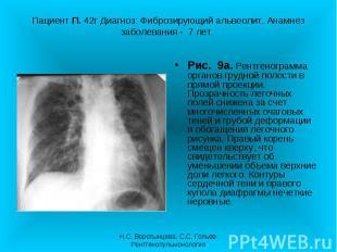 Рис. 9а. Рентгенограмма органов грудной полости в прямой проекции. Прозрачность