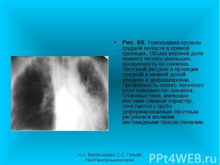 Рис. 9б. Томограмма органов грудной полости в прямой проекции. Объем верхней дол