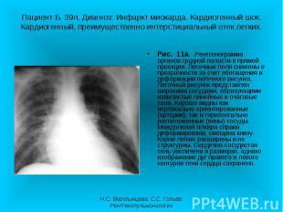Рис. 11а. .Рентгенограмма органов грудной полости в прямой проекции. Легочные по