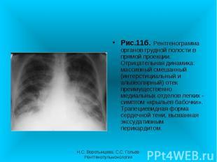 Рис.11б. Рентгенограмма органов грудной полости в прямой проекции. Отрицательная