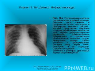 Рис. 35а. Рентгенограмма органов грудной полости в прямой проекции. Легочные пол