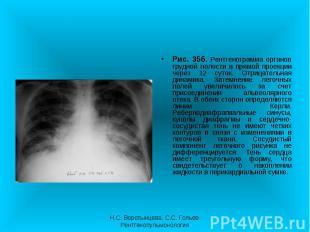 Рис. 35б. Рентгенограмма органов грудной полости в прямой проекции через 12 суто