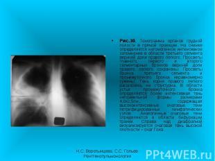 Рис.3б. Томограмма органов грудной полости в прямой проекции. На снимке определя