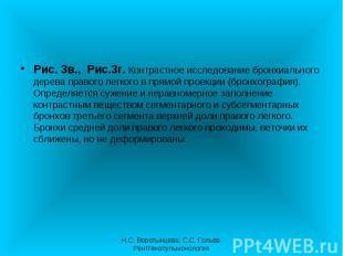 Рис. 3в., Рис.3г. Контрастное исследование бронхиального дерева правого легкого