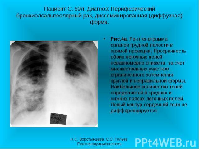 Рис.4а. Рентгенограмма органов грудной полости в прямой проекции. Прозрачность обоих легочных полей неравномерно снижена за счет множественных участков ограниченного затемнения круглой и неправильной формы. Наибольшее количество теней определяется в…