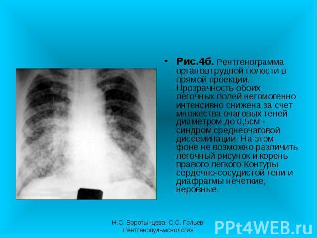Рис.4б. Рентгенограмма органов грудной полости в прямой проекции. Прозрачность обоих легочных полей негомогенно интенсивно снижена за счет множества очаговых теней диаметром до 0,5см - синдром среднеочаговой диссеминации. На этом фоне не возможно ра…