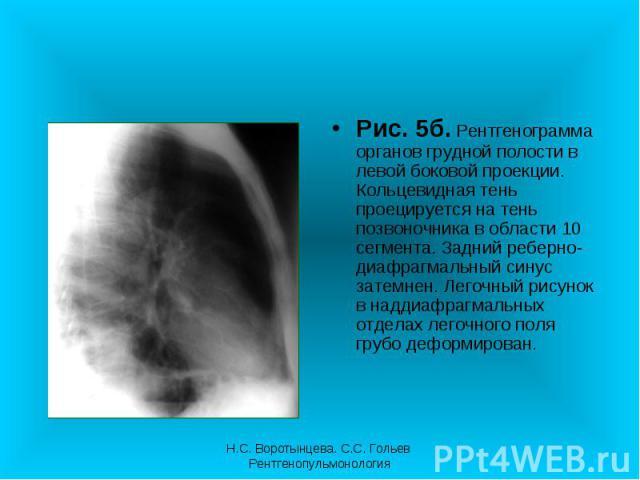 Рис. 5б. Рентгенограмма органов грудной полости в левой боковой проекции. Кольцевидная тень проецируется на тень позвоночника в области 10 сегмента. Задний реберно-диафрагмальный синус затемнен. Легочный рисунок в наддиафрагмальных отделах легочного…