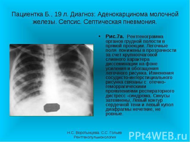 Рис.7а. Рентгенограмма органов грудной полости в прямой проекции. Легочные поля понижены в прозрачности за счет крупноочаговой сливного характера диссеминации на фоне усиления и обогащения легочного рисунка. Изменения сосудисто-интерстициального рис…