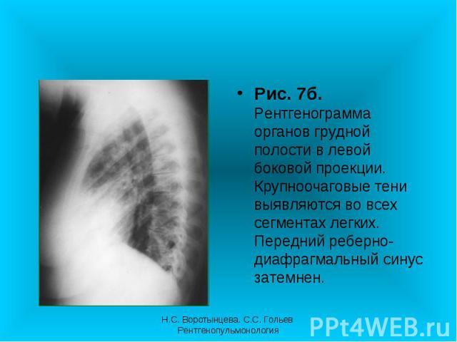 Рис. 7б. Рентгенограмма органов грудной полости в левой боковой проекции. Крупноочаговые тени выявляются во всех сегментах легких. Передний реберно-диафрагмальный синус затемнен. Рис. 7б. Рентгенограмма органов грудной полости в левой боковой проекц…