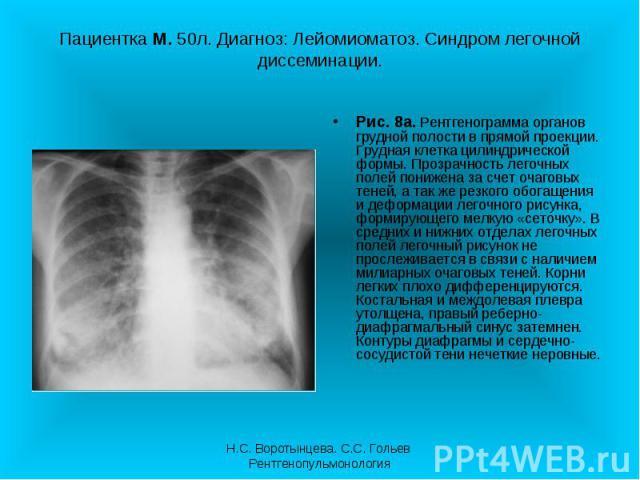 Рис. 8а. Рентгенограмма органов грудной полости в прямой проекции. Грудная клетка цилиндрической формы. Прозрачность легочных полей понижена за счет очаговых теней, а так же резкого обогащения и деформации легочного рисунка, формирующего мелкую «сет…