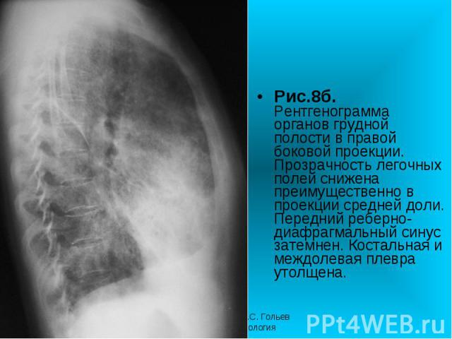 Рис.8б. Рентгенограмма органов грудной полости в правой боковой проекции. Прозрачность легочных полей снижена преимущественно в проекции средней доли. Передний реберно-диафрагмальный синус затемнен. Костальная и междолевая плевра утолщена. Рис.8б. Р…