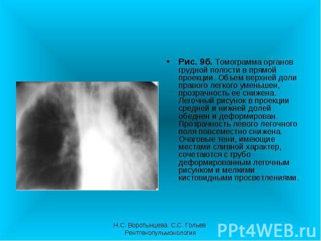 Рис. 9б. Томограмма органов грудной полости в прямой проекции. Объем верхней доли правого легкого уменьшен, прозрачность ее снижена. Легочный рисунок в проекции средней и нижней долей обеднен и деформирован. Прозрачность левого легочного поля повсем…