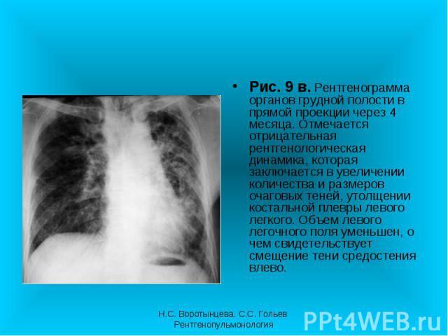 Рис. 9 в. Рентгенограмма органов грудной полости в прямой проекции через 4 месяца. Отмечается отрицательная рентгенологическая динамика, которая заключается в увеличении количества и размеров очаговых теней, утолщении костальной плевры левого легког…