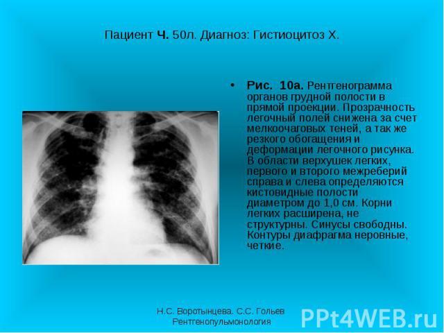 Рис. 10а. Рентгенограмма органов грудной полости в прямой проекции. Прозрачность легочный полей снижена за счет мелкоочаговых теней, а так же резкого обогащения и деформации легочного рисунка. В области верхушек легких, первого и второго межреберий …