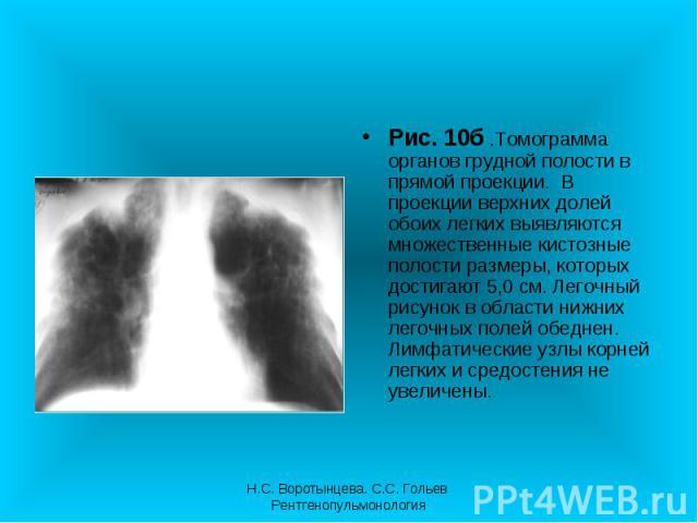 Рис. 10б .Томограмма органов грудной полости в прямой проекции. В проекции верхних долей обоих легких выявляются множественные кистозные полости размеры, которых достигают 5,0 см. Легочный рисунок в области нижних легочных полей обеднен. Лимфатическ…