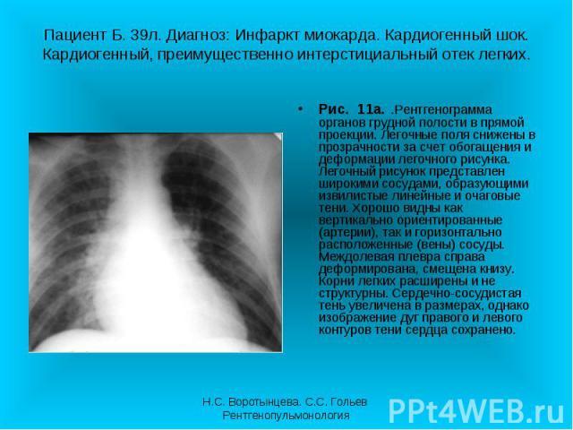 Рис. 11а. .Рентгенограмма органов грудной полости в прямой проекции. Легочные поля снижены в прозрачности за счет обогащения и деформации легочного рисунка. Легочный рисунок представлен широкими сосудами, образующими извилистые линейные и очаговые т…