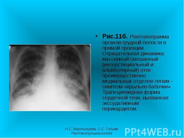 Рис.11б. Рентгенограмма органов грудной полости в прямой проекции. Отрицательная динамика: массивный смешанный (интерстициальный и альвеолярный) отек преимущественно медиальных отделов легких - симптом «крыльев бабочки». Трапециевидная форма сердечн…
